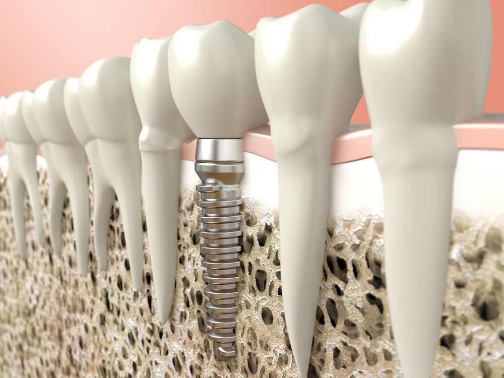 A 3-D rendering of how dental implants are situated among a patient's other teeth.
