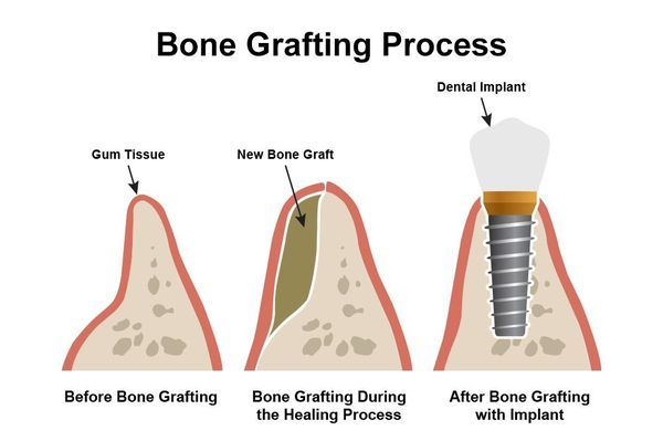 illustration of bone grafting with dental implants