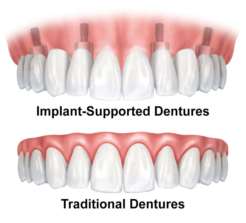 Comparison of dentures and implant-supported dentures.