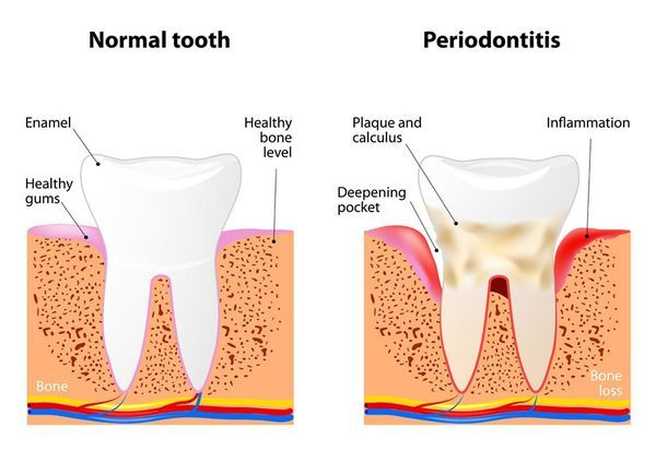 Illustration of effects of gum disease