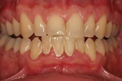 Bony Defect due to Periodontal Disease