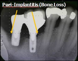 Peri-Implantitis Photo