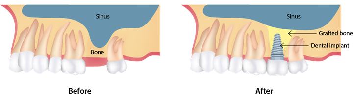 Illustration of sinus lift and dental implants treatment