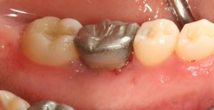 tooth crown after